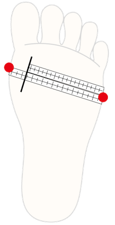 足囲の計測方法